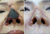 Bị hoại tử mũi sau khi tiêm chất làm đầy