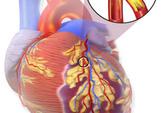 Protein liên quan với cơn đau tim