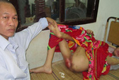 Bé trai khuyết tật bị hành hạ dã man có tỷ lệ thương tật 17%