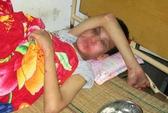 Bé trai khuyết tật bị hành hạ dã man trong khách sạn