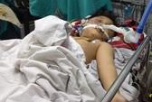Bố đánh dã man, con 8 tuổi nguy cơ tử vong 99%