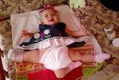 Cô bé ba chân đến Mỹ phẫu thuật
