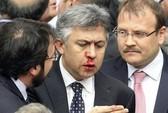 Nghị sĩ Thổ Nhĩ Kỳ vỡ mũi trong phiên họp quốc hội