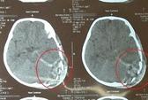 Bị ti vi đè vỡ sọ, bé 2 tuổi tử vong