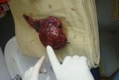 Bóc u phổi khổng lồ cho bệnh nhân hút thuốc lá