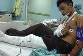 Đồng Nai: Thêm một vụ côn đồ truy sát thiếu niên 16 tuổi