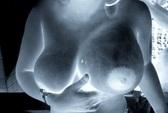 Một phụ nữ nhập viện do thời trẻ bơm ngực