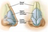 Bệnh viện Tai-Mũi-Họng TP HCM: Phẫu thuật tạo mũi mới cho người mất mũi