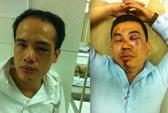 2 luật sư bào chữa cho Đỗ Đăng Dư bị đánh do làm bắn bụi bẩn