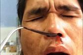 Uống nước suối bị đỉa dài 5 cm chui vào mũi