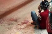 Vụ chém rớt bàn tay: Xác định được kẻ chém nạn nhân tử vong