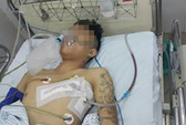 Thanh niên 18 tuổi bị đâm thấu ngực nghi do ghen tuông