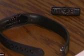 Vòng đeo tay thông minh Fitbit phát nổ gây bỏng