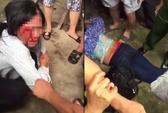 Đi bán tăm bông từ thiện, 2 phụ nữ bị đánh hội đồng dã man