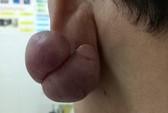 """Phẫu thuật thành công ca sẹo lồi """"khủng"""" ở dái tai"""