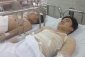 Bình Dương: Nổ ở nhà máy tôn, 8 công nhân bị bỏng