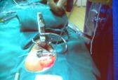 Dao plasma giúp phẫu thuật tai mũi họng không đau đớn