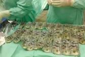 Vợ nuốt 7.000 USD vào bụng để giấu chồng sau khi cãi nhau
