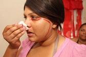 Bệnh lạ: Đổ mồ hôi và khóc ra máu