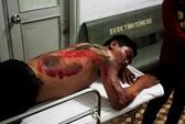 Điều tra vụ kéo lê tài xế Vinasun đến tróc da lưng
