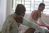 Cháy lớn ở Đồng Nai làm 23 người phỏng: Doanh nghiệp sẽ lo hết!