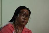 Hai vợ chồng bị tạt axit trong đêm