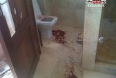 Lộ ảnh đẫm máu trong nhà Pistorius