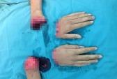 Một thanh niên bị đứt lìa 2 bàn tay