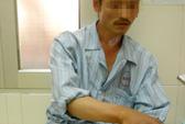 Hà Nội: Nhiều người nhập viện vì bị chuột cắn