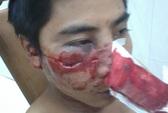 CA Hà Nội kết luận: Không có chuyện 141 đánh người