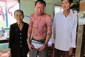 Thông tin mới nhất vụ tạt axit cả gia đình tại Gò Vấp