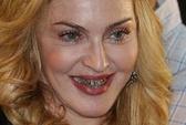 Madonna lại khoe hàm răng vàng lấp lánh