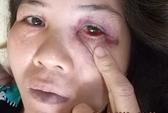 Một phụ nữ tố bị công an đánh đập