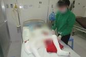 Vụ gia đình bị đốt khi đang ngủ: Bé gái 10 tuổi đã chết