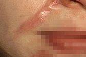 """Nữ sinh 13 tuổi bị rạch mặt vì """"thích"""" bồ người khác"""