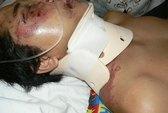 Đề nghị khởi tố vụ CSGT huyện Diên Khánh đánh người