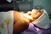 """Phẫu thuật nội soi bướu cổ: Nhanh và """"đẹp""""!"""