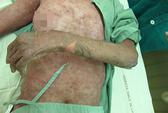 Lạm dụng thuốc: Trúng độc da
