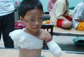 Bé trai 5 tuổi bị gấu nuôi cắn đứt 2 tay