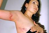 Mexico: Cựu nữ thị trưởng bị đánh đến chết