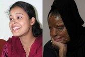 Cô gái bị tạt axit trở thành triệu phú