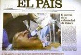 Xôn xao ảnh ông Chavez thở máy trên giường bệnh