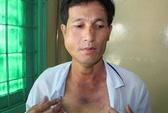 Giám định thương tật người bị bí thư xã đánh gãy xương hàm