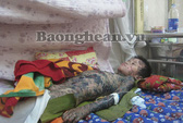 Dị ứng Paracetamol, bé 8 tuổi bị tróc da toàn thân