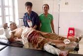 Tranh chấp đất rừng, 5 người bị thương nặng