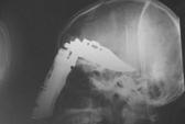 Cứu sống bệnh nhân bị đâm thủng não