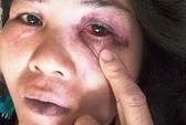 Công an TP Nha Trang phủ nhận việc đánh người tại trụ sở