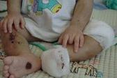 Một trẻ bị phù não nặng khi gửi ở nhóm trẻ gia đình