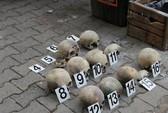 15 hộp sọ nằm ven đường