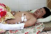 Cứu sống bệnh nhân bị bắn hai phát đạn chí mạng